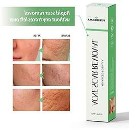 Acne Hair Drying Towels Scar Removal Cream Treatment For Fac