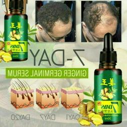 Hair Fast Growth Essential Oil Ginger Germinal Anti Hair Los