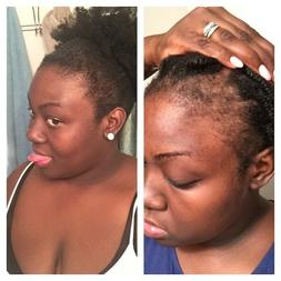 Hair Growth Oil Serum  for Hair loss and Thinning  Alopecia