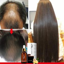 Hair Regrowth Shampoo Topical Solution Hair Loss Treatment N