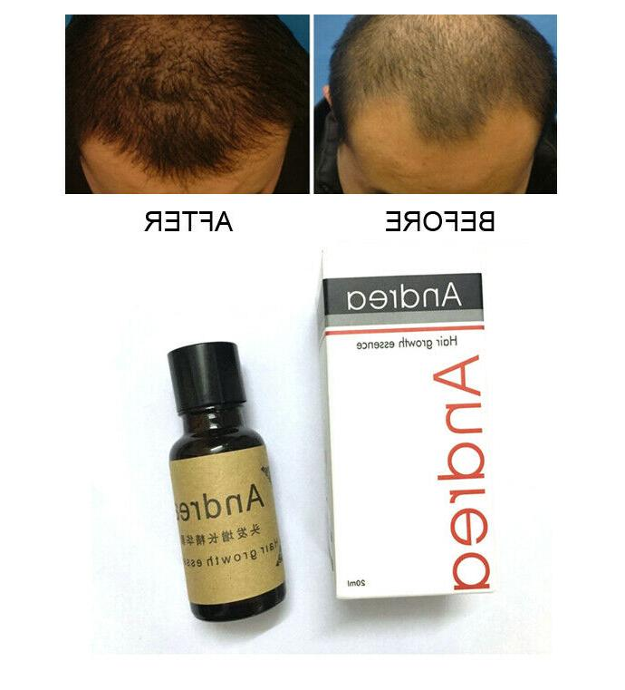 andrea hair growth ginger essence natural hair