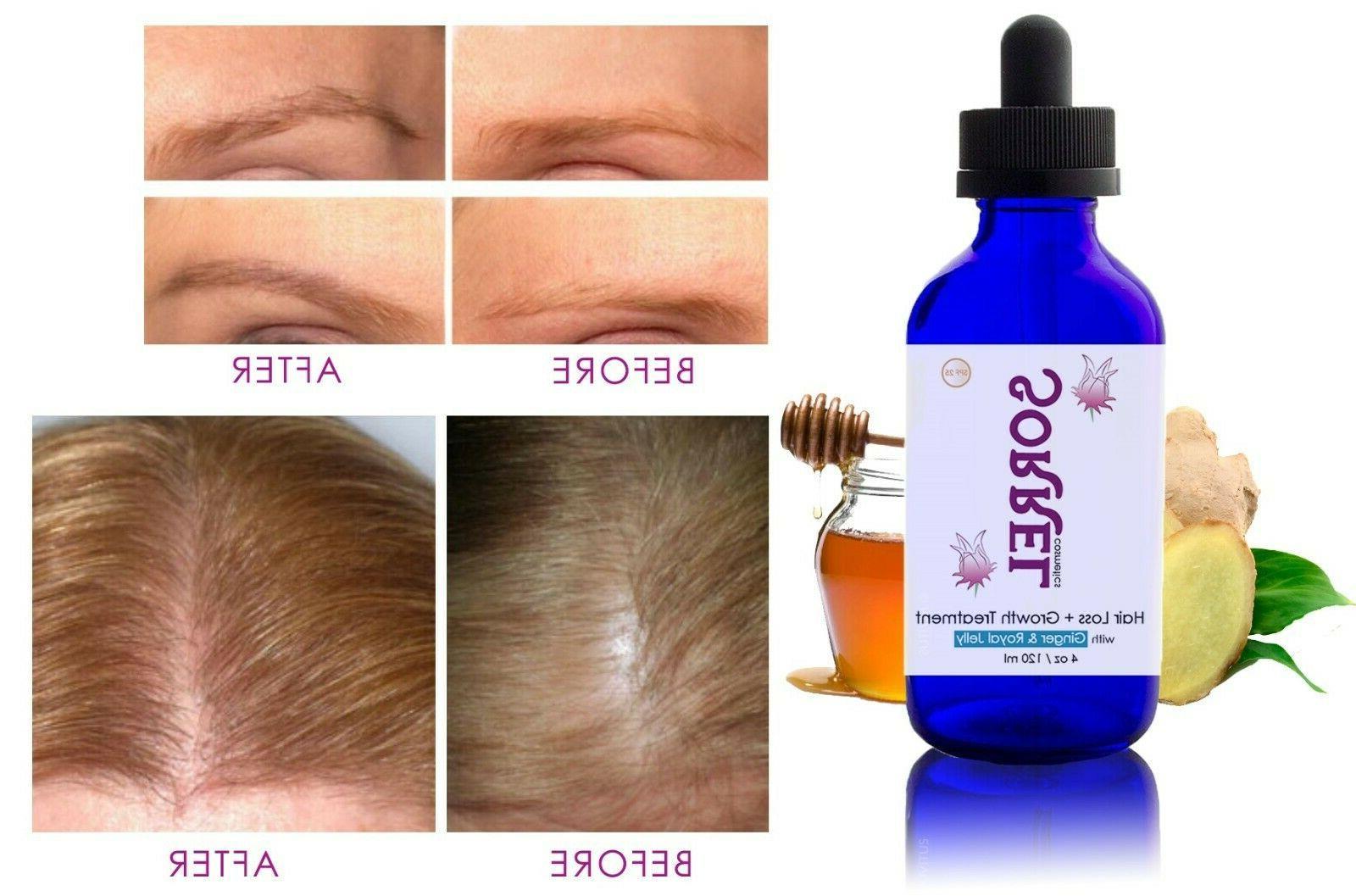 Anti Hair Loss Growth Treatment Dropper Women Men 4oz Thinni