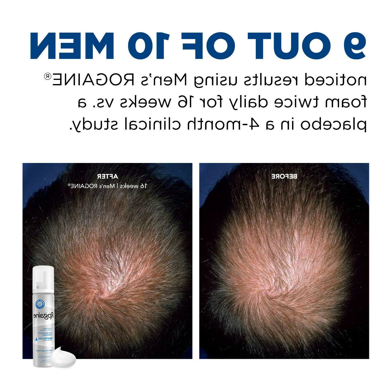 Rogaine Foam Hair & Treatment 5% Minoxidil - Supply