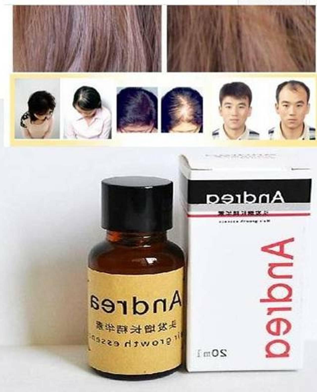 Andrea Hair Growth Hair Treatment ginger Sunburst raise