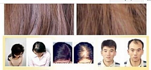 Andrea Hair Sunburst ml