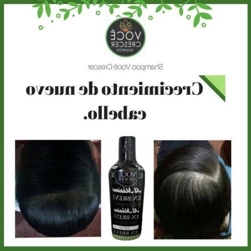 Voce Loss Alopecia Hair