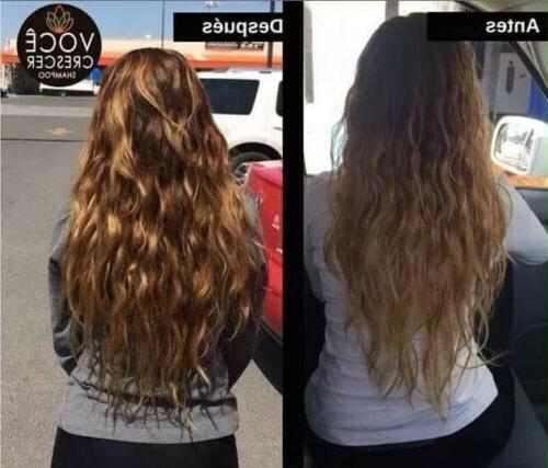 Voce Loss Treatment Alopecia Hair Controls Dandruff