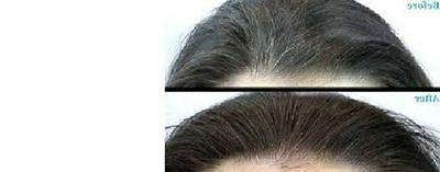 Natural Hair Loss Treatment For Fast Growth Regrowth Herbal hair