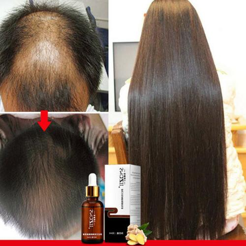 Hair Solution Hair Loss Treatment Natural