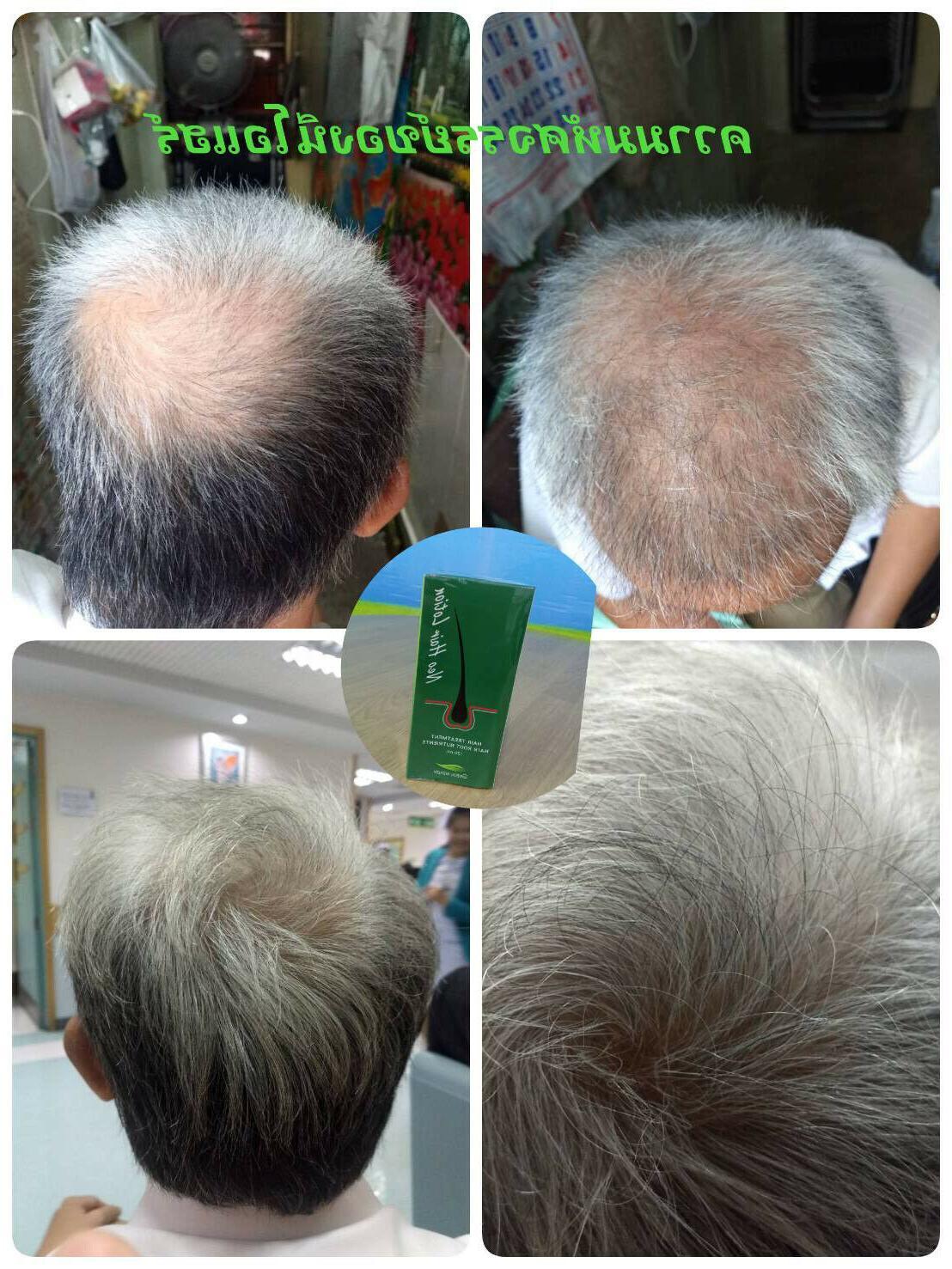 NEO Lotion BEARD SIDEBURNS Longer Stop Anti Hair Fall