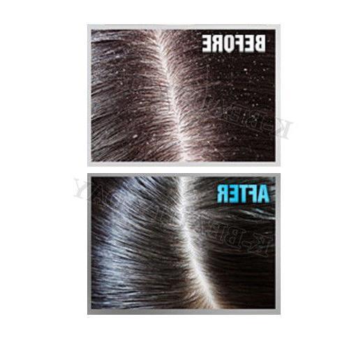Solid Scalp Hair Hair Ampoule 8pcs Protein Hair Care Clinic