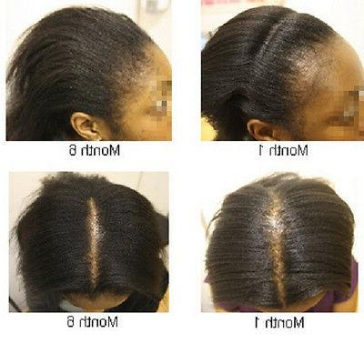 Jamaican Black Castor Oil Scalp Treatment for Thinning Hair