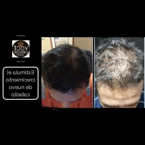 Voce Crescer Shampoo Hair Loss Treatment Regrows Hair Controls Dandruff