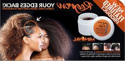 Most wanted Hair Loss Treatment for damaged edges w/RESULTS!