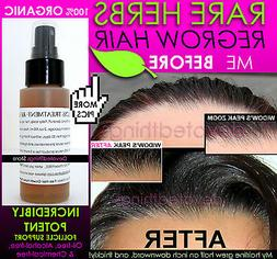 ORGANIC HAIR REGROWTH TREATMENT MEN & WOMEN HAIR LOSS TREATM
