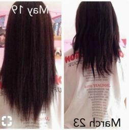 Rapid Fast Amazing Topical Restoration oil Hair Regrowth Tre